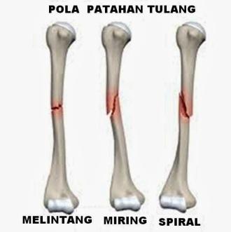 gbr patah tulang 8